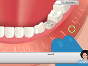 Operate Now Dental Implant